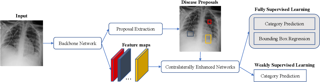 Figure 4 for Contralaterally Enhanced Networks for Thoracic Disease Detection