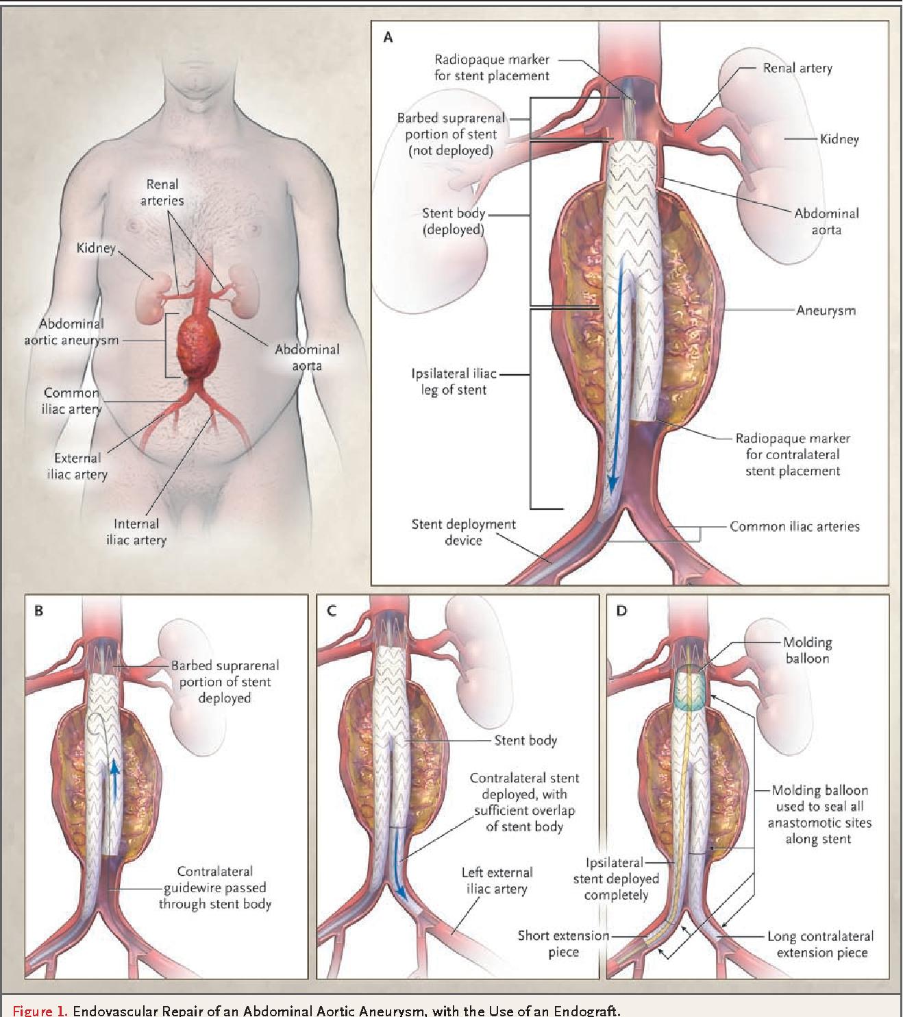Endovascular repair of abdominal aortic aneurysm. - Semantic Scholar