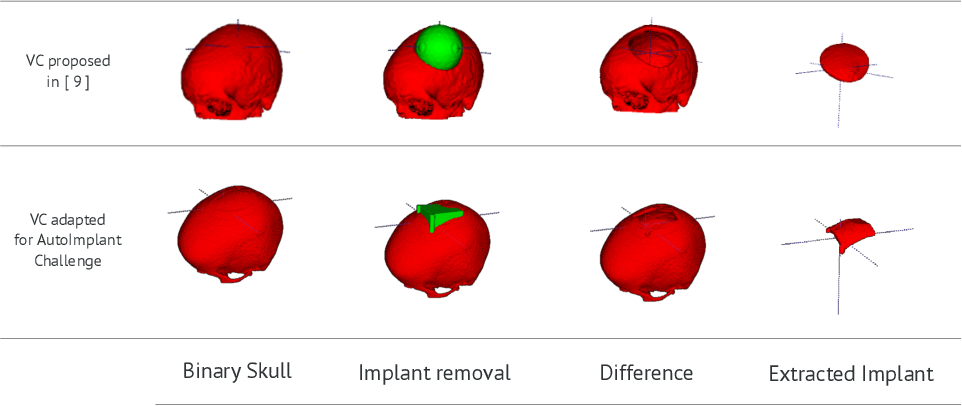 Figure 3 for Cranial Implant Design via Virtual Craniectomy with Shape Priors