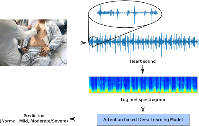 Figure 1 for Deep Attention-based Representation Learning for Heart Sound Classification