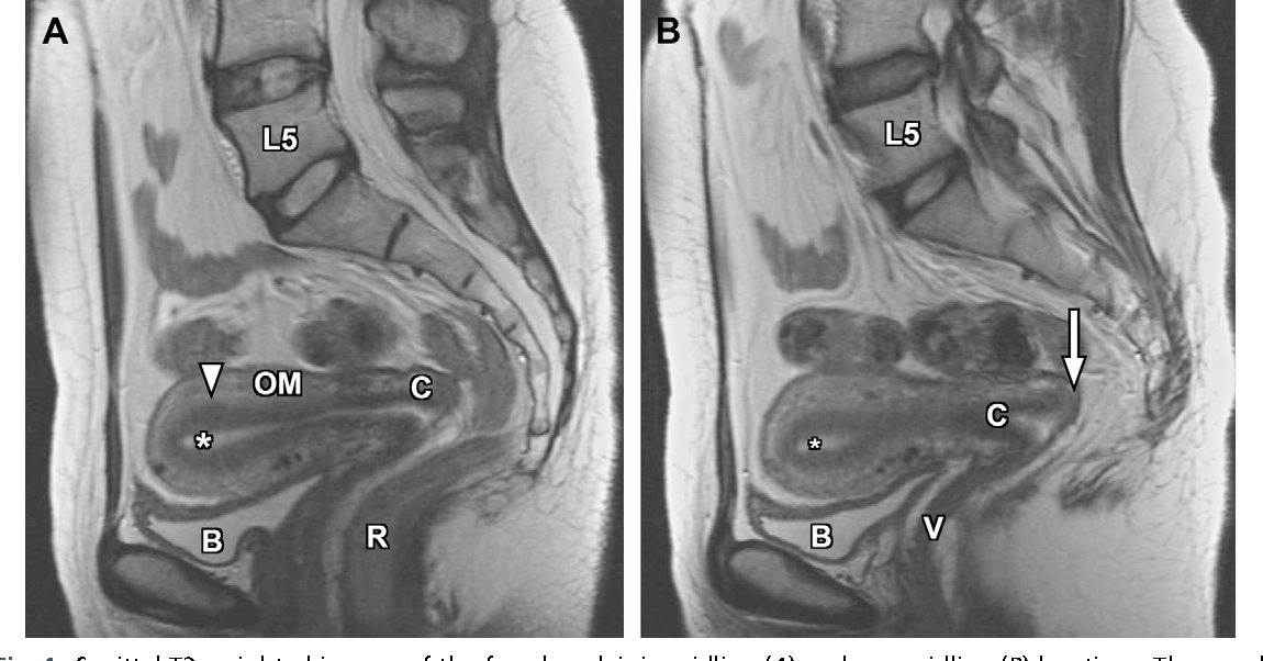 Figure 5 from Normal and variant pelvic anatomy on MRI. - Semantic ...