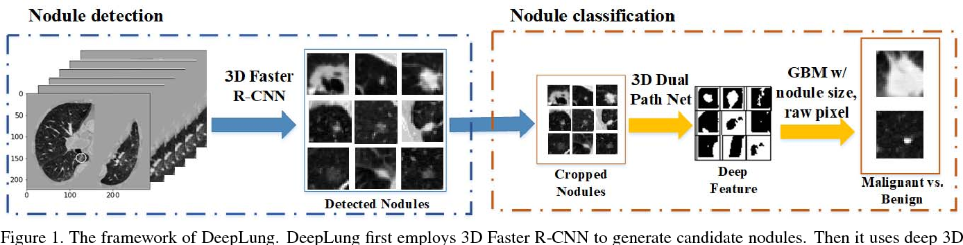 Figure 1 for DeepLung: Deep 3D Dual Path Nets for Automated Pulmonary Nodule Detection and Classification