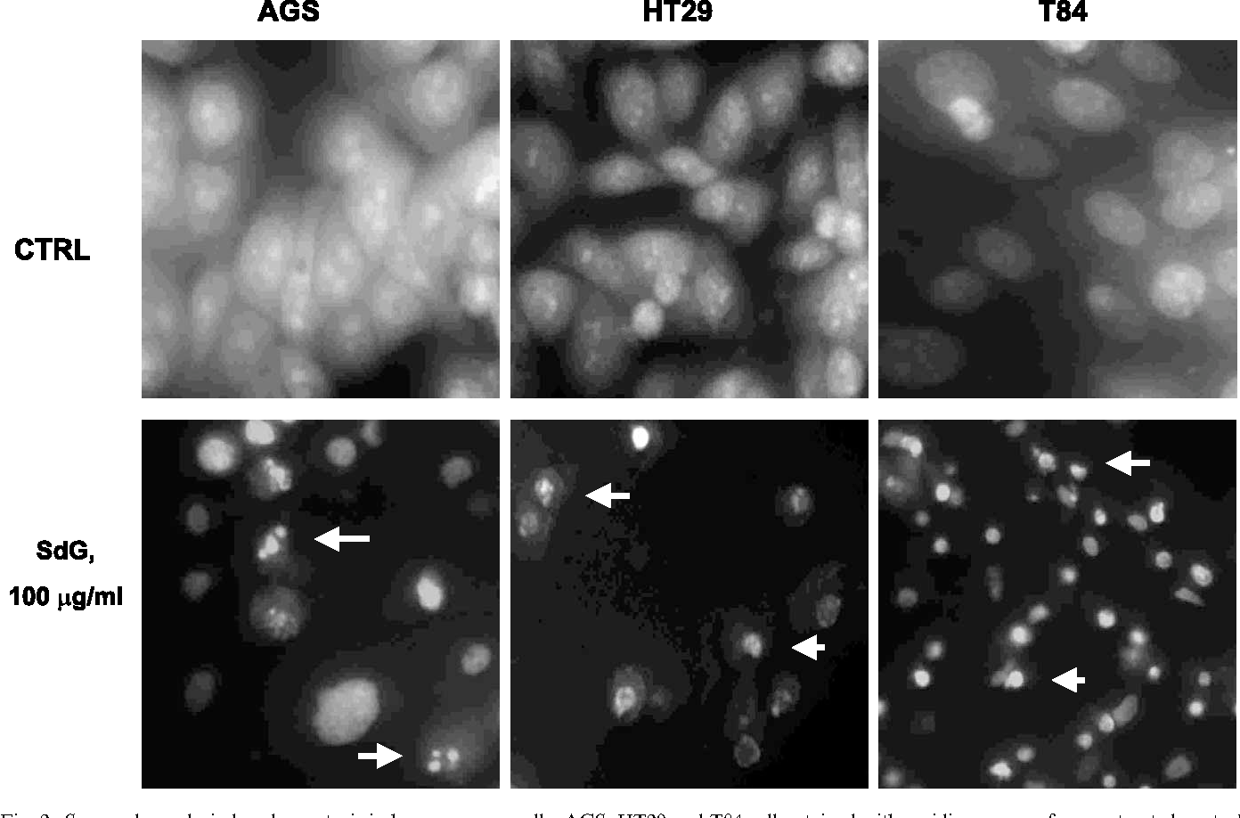 Fig. 2. Sangre de grado-induced apoptosis in human cancer cells. AGS, HT29 and T84 cells, stained with acridine orange, from untreated control cultures or cells exposed to sangre de grado (SdG, 100 mg/ml) for 12 h as described in Section 2. Apoptotic cells show chromatin condensation and nuclear fragmentation.