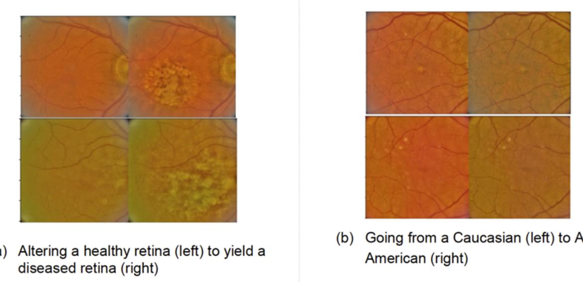 Figure 1 for Addressing Artificial Intelligence Bias in Retinal Disease Diagnostics