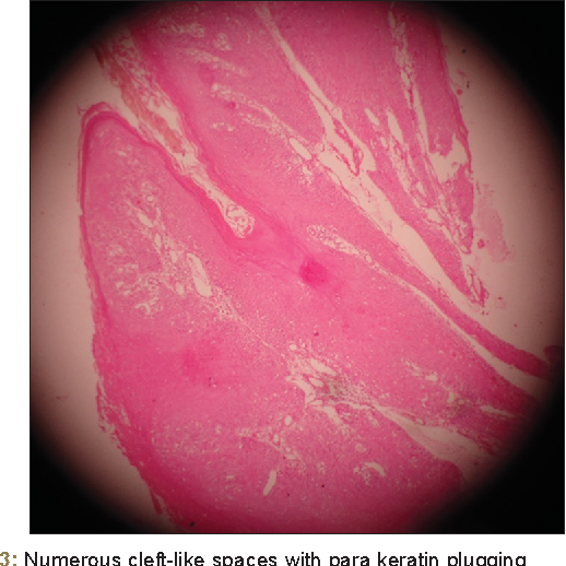 Figure 3 from Verrucous Carcinoma: A Case Report - Semantic