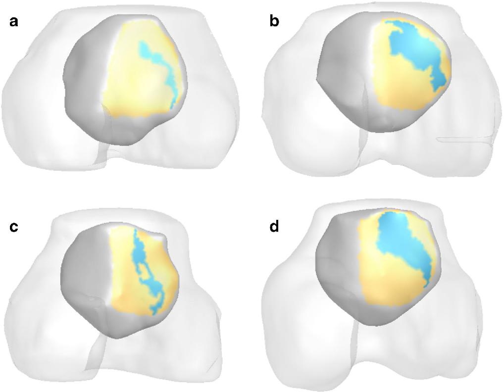 Structure of lateral patellar retinaculum - Semantic Scholar
