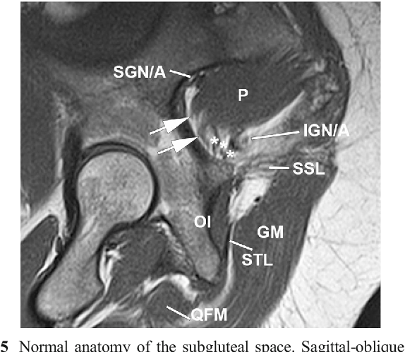 Deep gluteal syndrome: anatomy, imaging, and management of sciatic ...