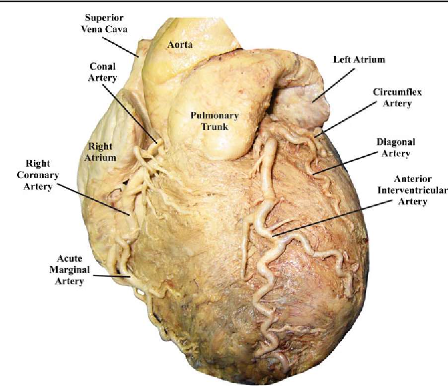 Figure 3 from The Clinical Anatomy of the Coronary ...