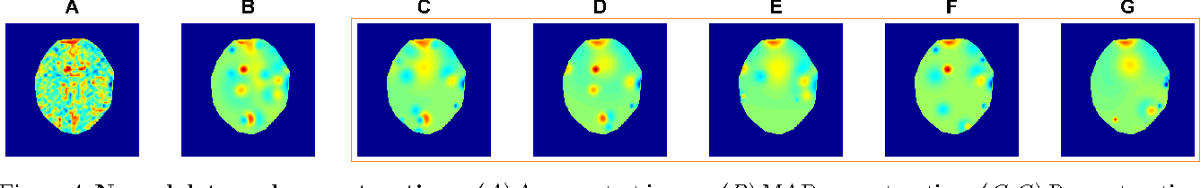 Figure 4 for Nonparametric variational inference