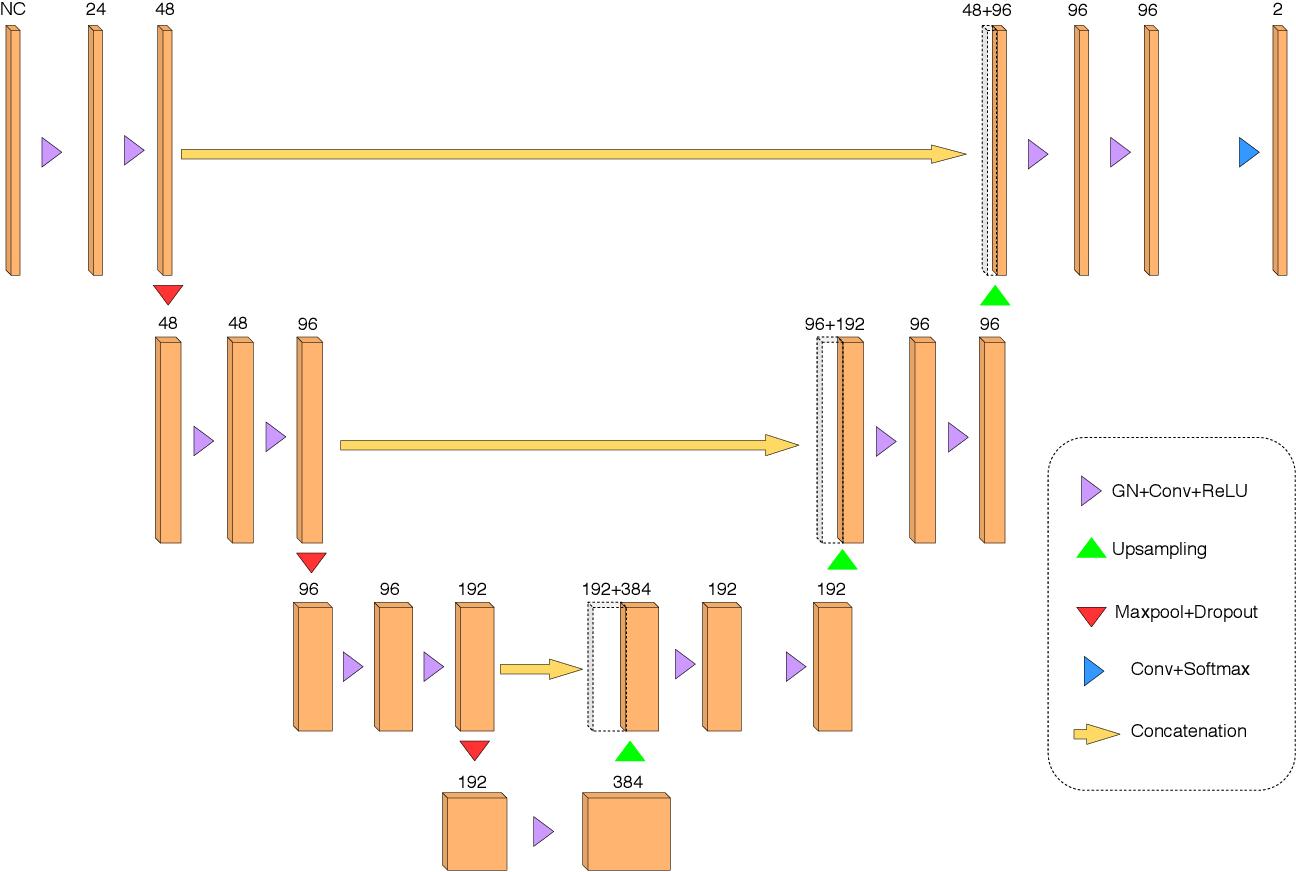 Figure 3 for Towards broader generalization of deep learning methods for multiple sclerosis lesion segmentation