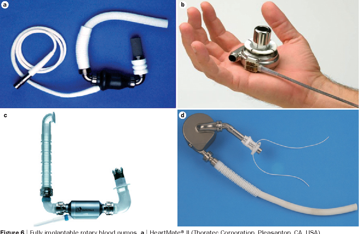 Figure 6 from Cardiogenic shock in ACS. Part 2: role of mechanical ...