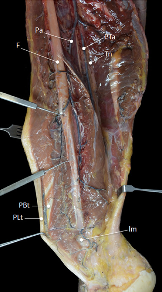 Peroneal tendons well vascularized: results from a cadaveric study ...