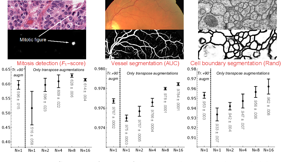 Figure 3 for Roto-Translation Covariant Convolutional Networks for Medical Image Analysis