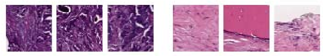 Figure 1 for Multi-Level Batch Normalization In Deep Networks For Invasive Ductal Carcinoma Cell Discrimination In Histopathology Images