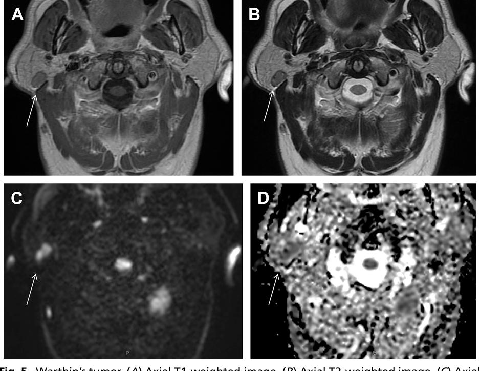Figure 5 From Parotid Gland Imaging Semantic Scholar