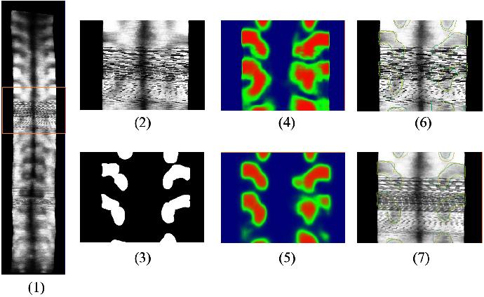 Figure 4 for Bone Feature Segmentation in Ultrasound Spine Image with Robustness to Speckle and Regular Occlusion Noise