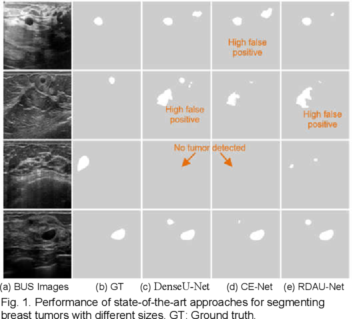Figure 1 for ESTAN: Enhanced Small Tumor-Aware Network for Breast Ultrasound Image Segmentation