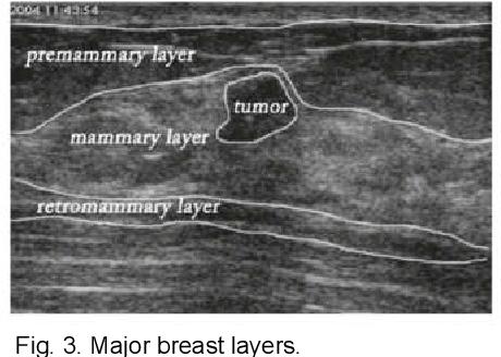 Figure 3 for ESTAN: Enhanced Small Tumor-Aware Network for Breast Ultrasound Image Segmentation
