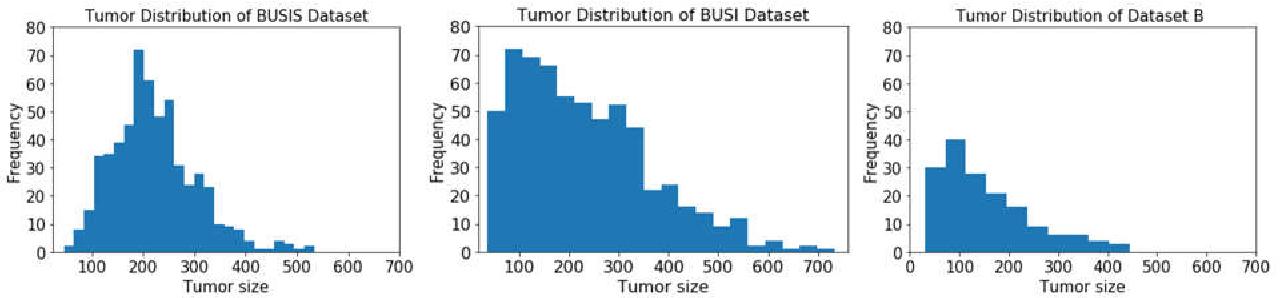 Figure 4 for ESTAN: Enhanced Small Tumor-Aware Network for Breast Ultrasound Image Segmentation