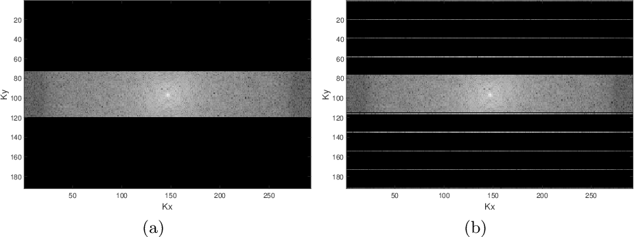 Figure 1 for A Multimodal Deep Network for the Reconstruction of T2W MR Images