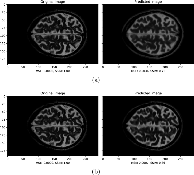 Figure 3 for A Multimodal Deep Network for the Reconstruction of T2W MR Images