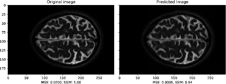 Figure 4 for A Multimodal Deep Network for the Reconstruction of T2W MR Images