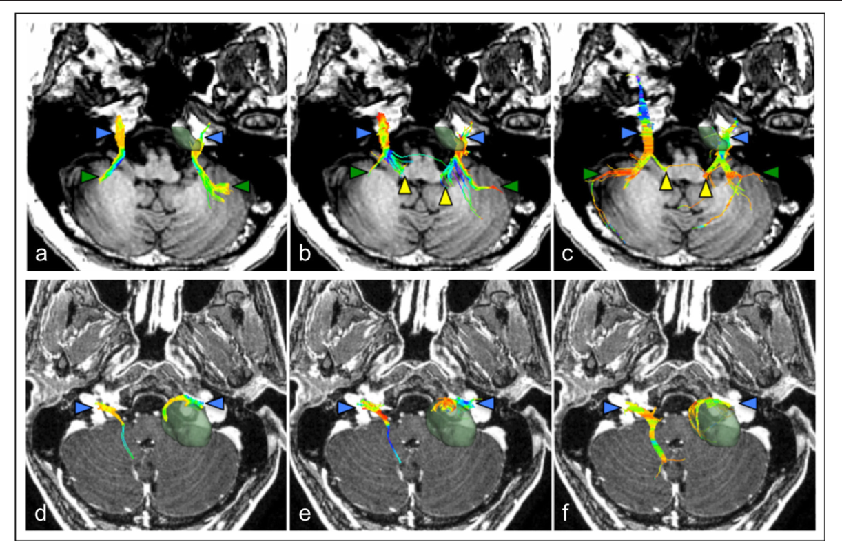 FIGURE 3 | Comparison of cranial nerve fiber tractography methods in patients with posterior fossa tumors. Streamlines are displayed overlaid on a T1 anatomical image. Color triangles indicate particular anatomical landmarks: blue: cranial nerves, green: superior cerebellar fibers, yellow: brainstem nuclei. (a–c) Tractography of the trigeminal nerve (CN V) in a patient with a left-sided petroclival meningioma; (d–f) Tractography of the facial-vestibulocochlear bundle (CN VII/VIII) in a patient with a left sided vestibular schwannoma. (a,d) single diffusion tractography, (b,e) extended streamline tractography, (c,f) constrained spherical deconvolution. Images courtesy of (Behan et al., 2017) (CC-BY license).