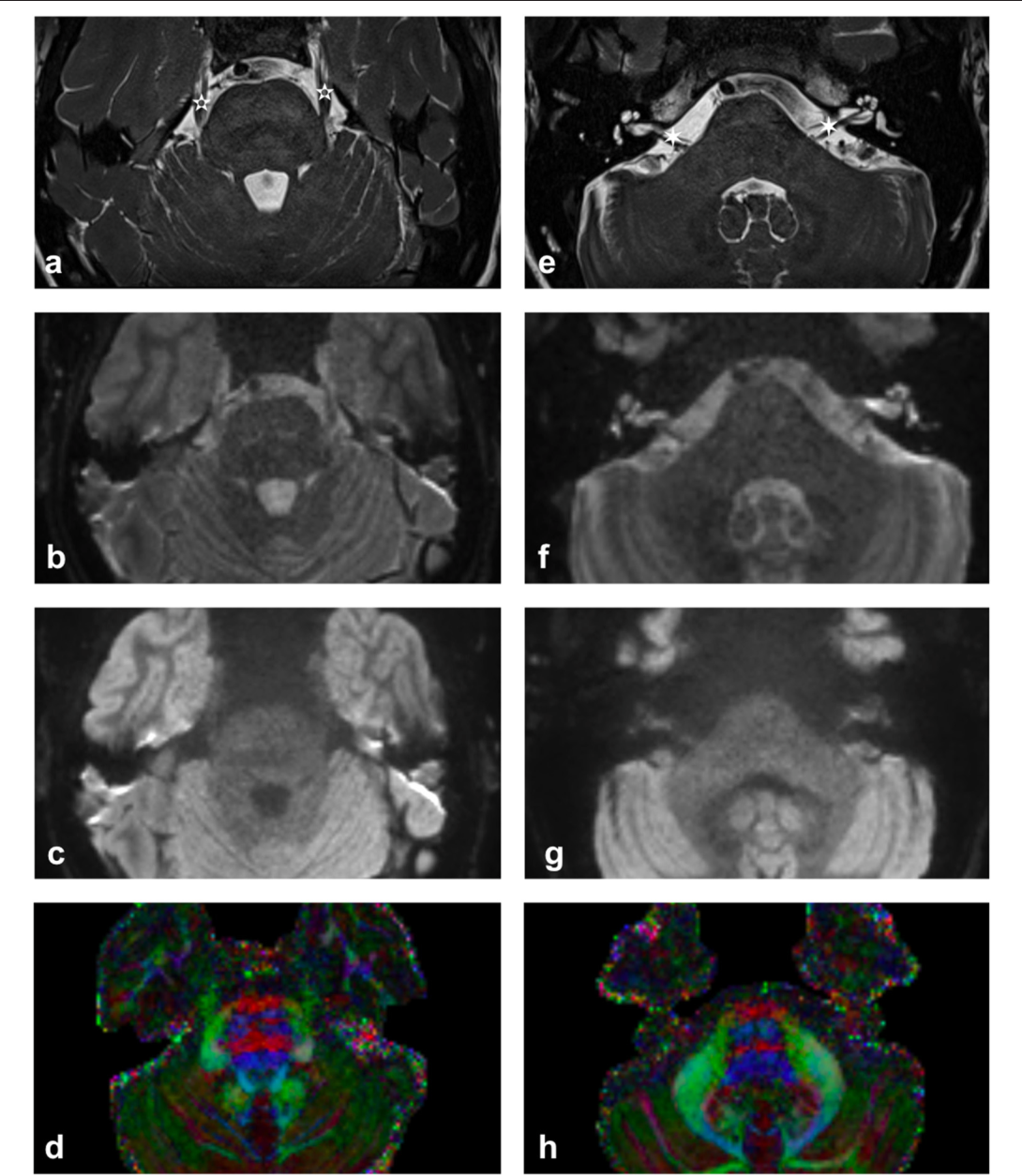 FIGURE 1 | Imaging of upper (a–d) and lower (e–h) pons. (a,e) High contrast T2-weighted images illustrating the trigeminal nerve (white 5-pointed star) and the facial and vestibulocochlear nerves (white 6-pointed star). [acquired with a ZOOMit sequence and a 0.5 × 0.5 × 0.5mm voxel size]. (b,f) mean b0 diffusion weighted image. (c,g) mean b1000 diffusion weighted image. (d,h) Diffusion-encoded-color map. Note the green anterior trigeminal projections from the brainstem in (d) and the red right-left projections of the CN VII/VIII complex in (h) [more pronounced on the subject's right-hand side].