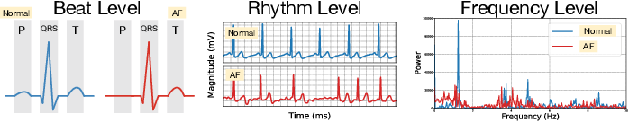 Figure 1 for MINA: Multilevel Knowledge-Guided Attention for Modeling Electrocardiography Signals