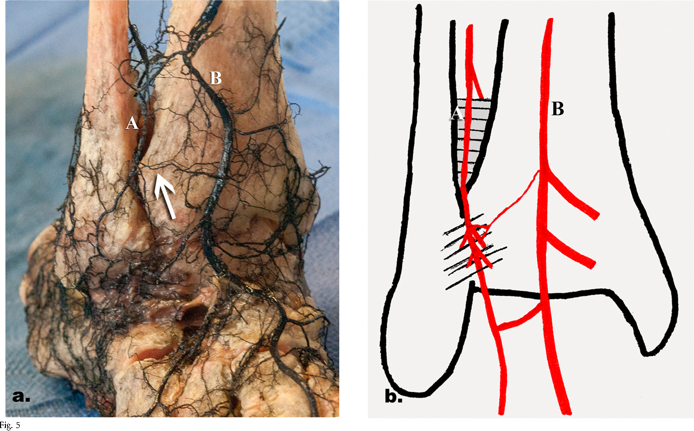 Figure 5 from Vascular anatomy of the tibiofibular syndesmosis ...