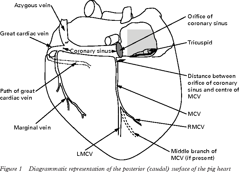 A Multifilamented Electrode In The Middle Cardiac Vein Reduces