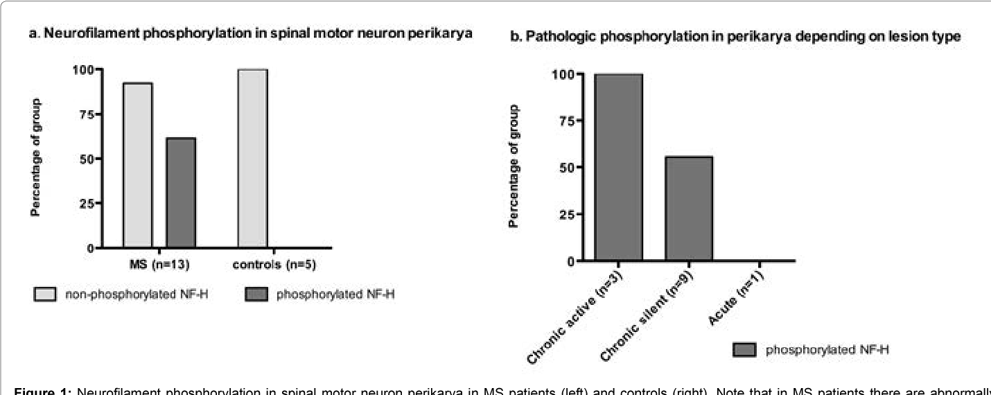 Figure 1: Neurofilament phosphorylation in spinal motor neuron perikarya in MS patients (left) and controls (right). Note that in MS patients there are abnormally phosphorylated NF-H in approximately two thirds of the group compared to none in the control group. Pathologic phosphorylation in perikarya depending on lesion type: chronic active (left), chronic silent (middle) and acute (right).