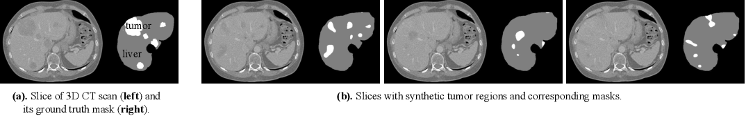 Figure 3 for High Resolution Medical Image Analysis with Spatial Partitioning