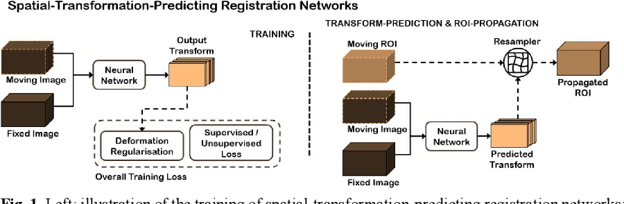 Figure 1 for Conditional Segmentation in Lieu of Image Registration
