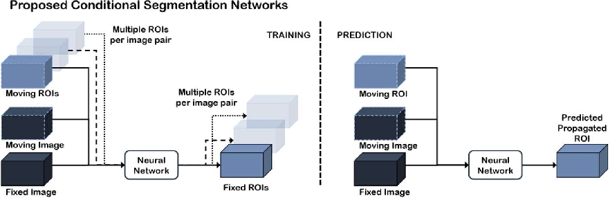 Figure 2 for Conditional Segmentation in Lieu of Image Registration