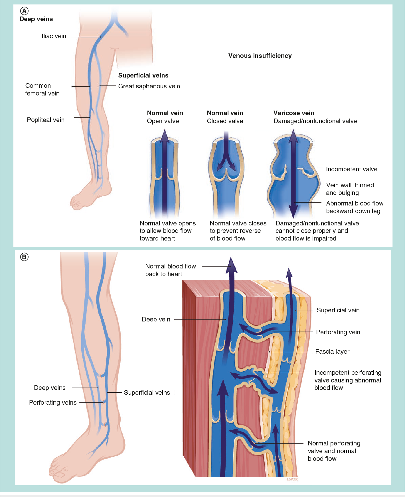Varicose veins : evaluating modern treatments , with emphasis on ...