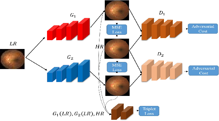 Figure 1 for Progressive Generative Adversarial Networks for Medical Image Super resolution