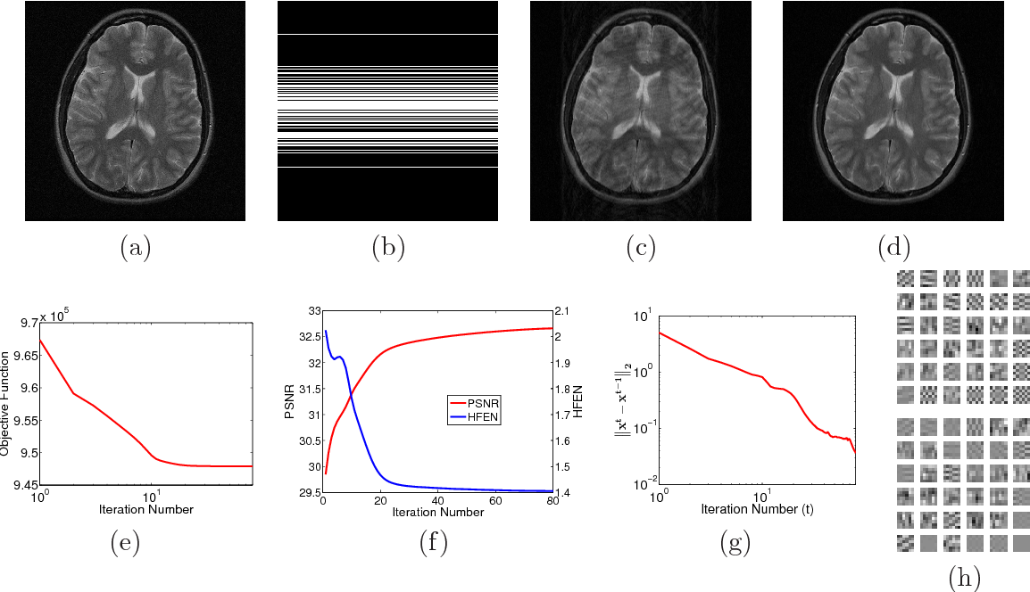 Figure 2 for Efficient Blind Compressed Sensing Using Sparsifying Transforms with Convergence Guarantees and Application to MRI