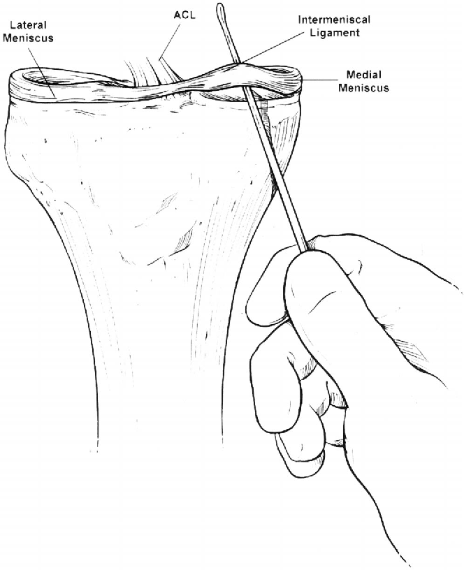 Figure 2 From The Anterior Intermeniscal Ligament Of The Knee An