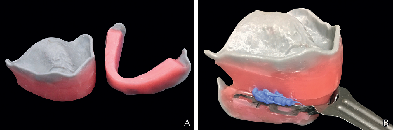 Figure 2 from Removable complete digital dentures: A