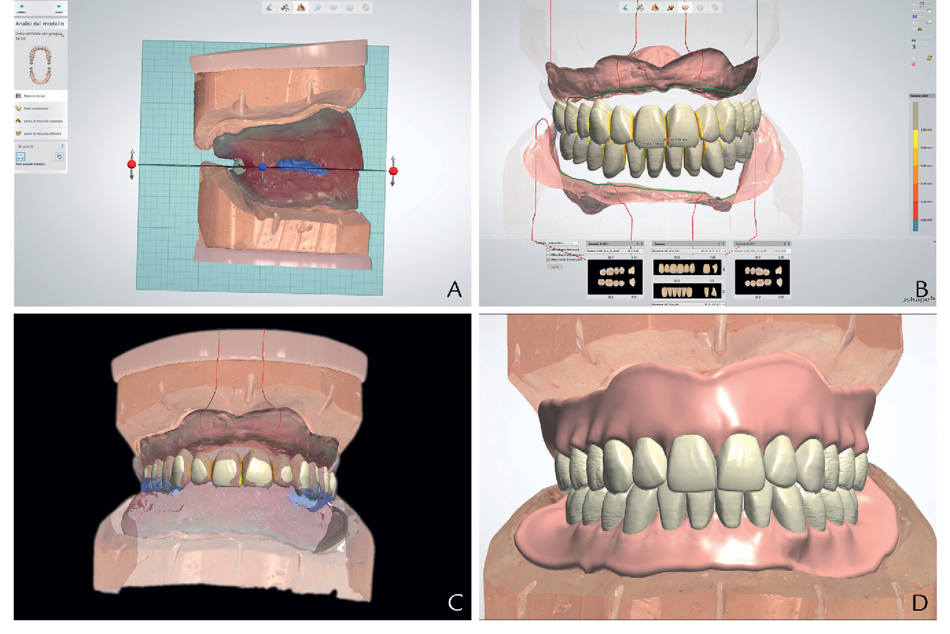 Figure 4 from Removable complete digital dentures: A
