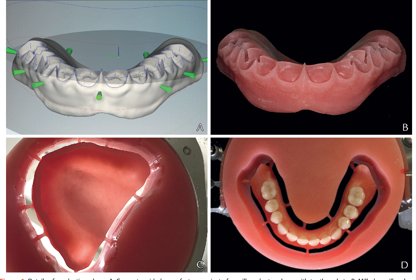 Figure 6 from Removable complete digital dentures: A