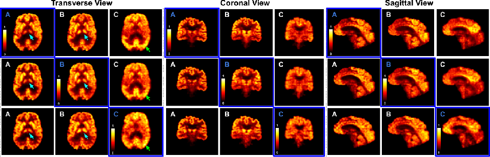Figure 3 for Synthesizing Multi-Tracer PET Images for Alzheimer's Disease Patients using a 3D Unified Anatomy-aware Cyclic Adversarial Network