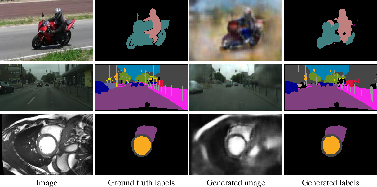 Figure 3 for Revisiting CycleGAN for semi-supervised segmentation
