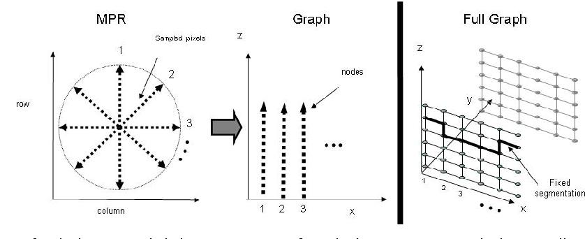 Figure 4 for Aorta Segmentation for Stent Simulation