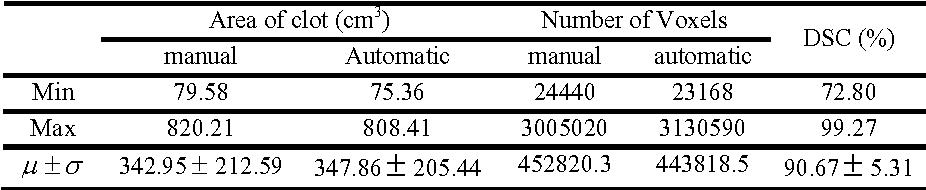 Figure 2 for Aorta Segmentation for Stent Simulation