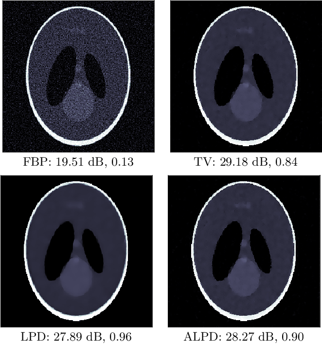 Figure 1 for Adversarially learned iterative reconstruction for imaging inverse problems