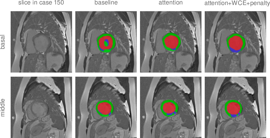 Figure 4 for Anatomy Prior Based U-net for Pathology Segmentation with Attention