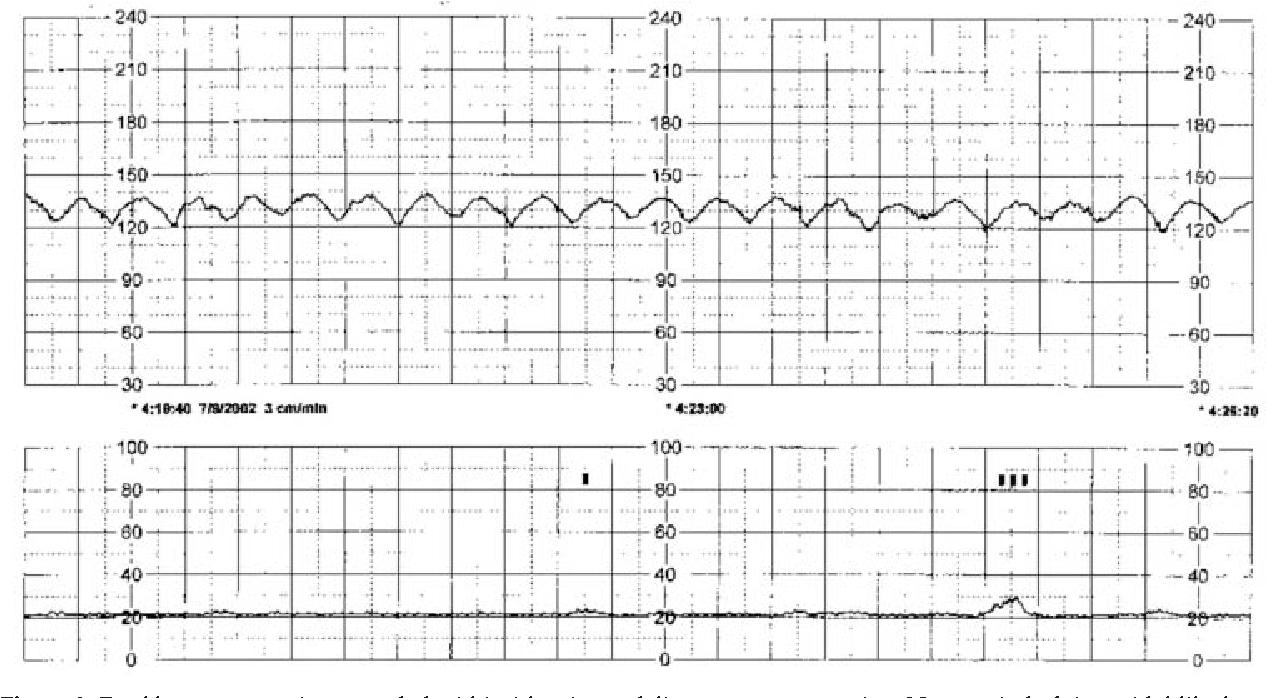 Figure 2 From Title Sinusoidal Heart Rate Pattern