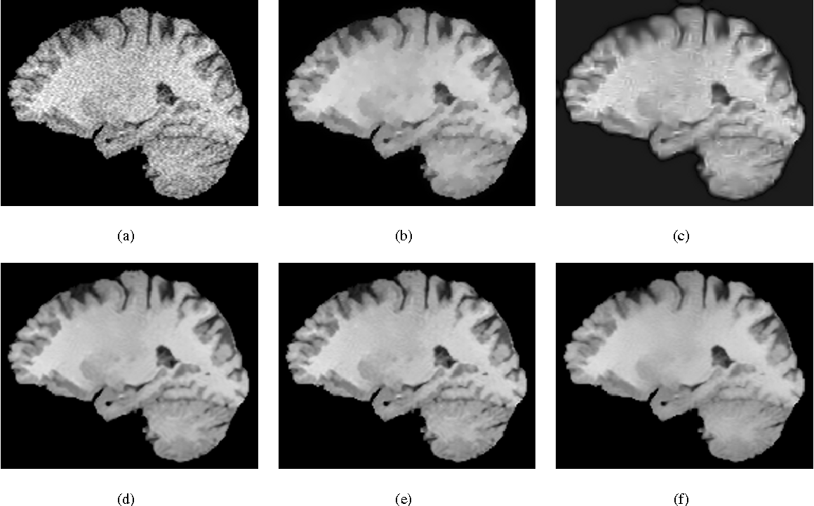 Figure 2 for A New Similarity Measure for Non-Local Means Filtering of MRI Images